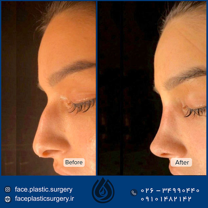 dr-norozi-before-after