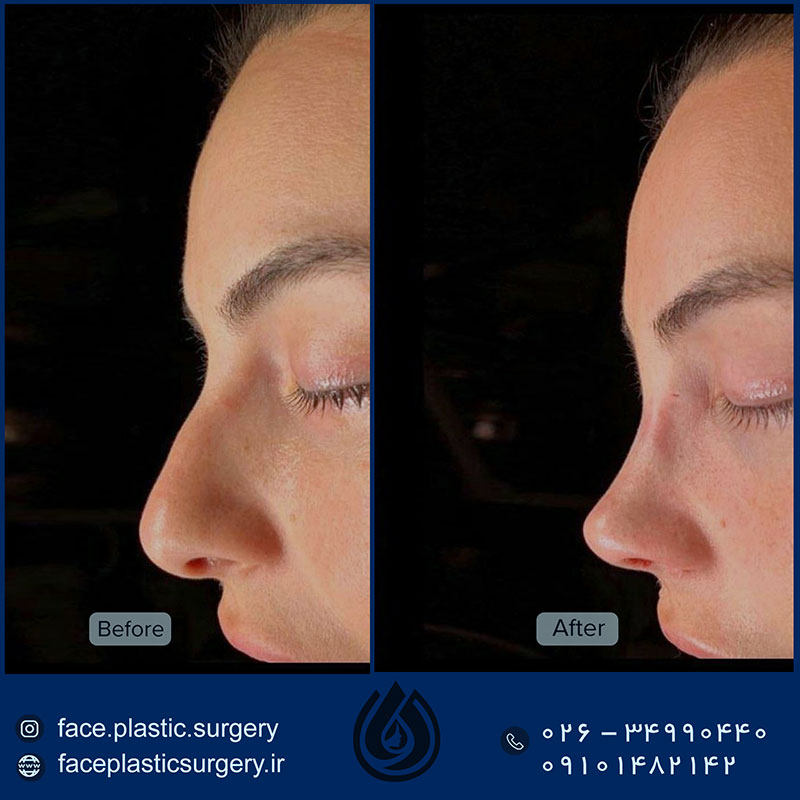 dr-norozi-before-after1