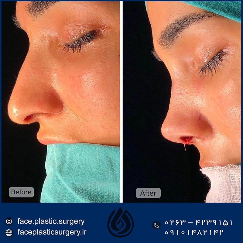 dr-norozi-before-after111