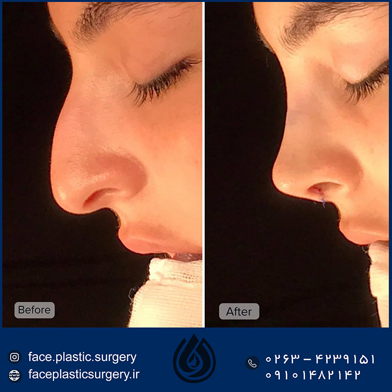 dr-norozi-before-after2