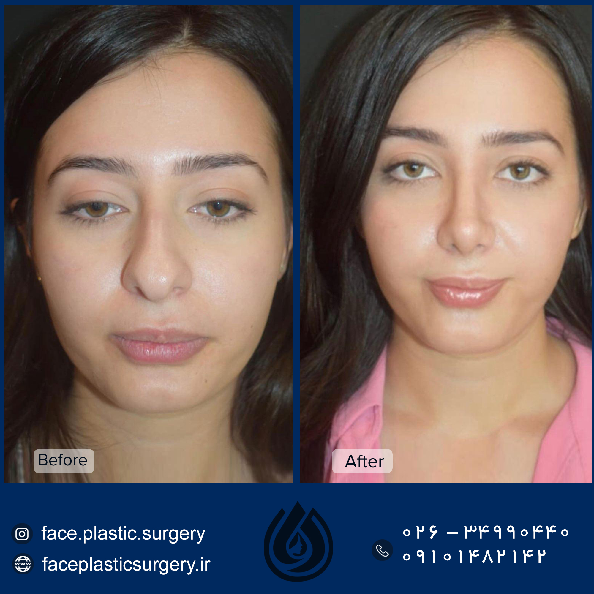 dr-norozi-before-after.jpg11