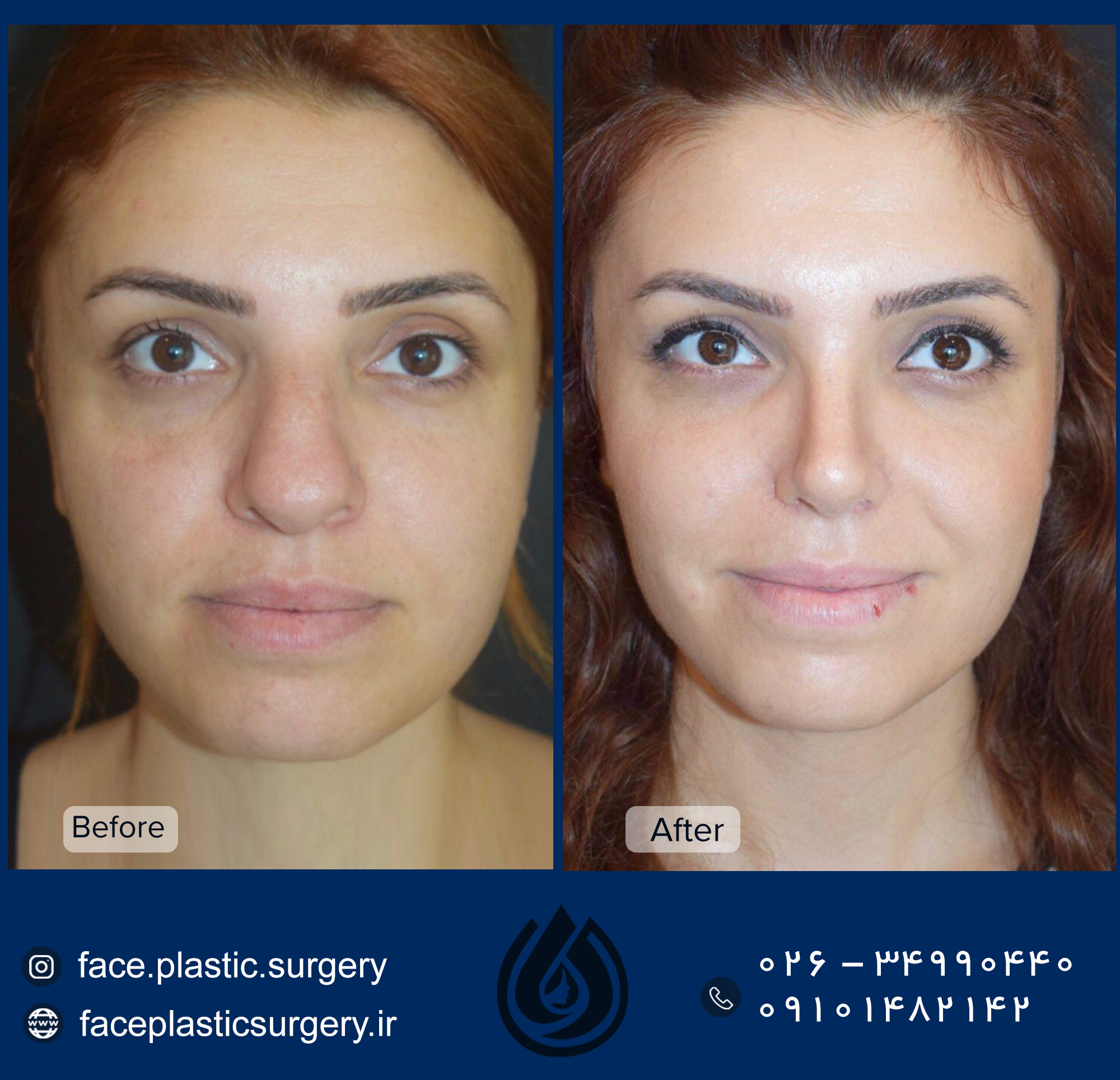 dr-norozi-before-after.jpg113