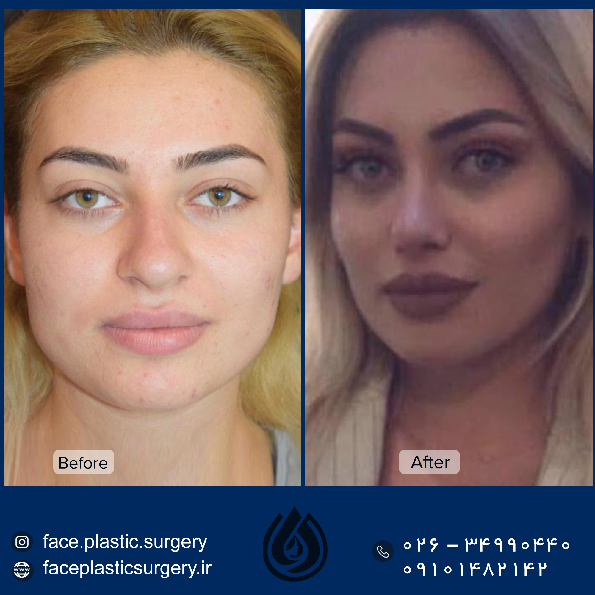 dr-norozi-before-after.jpg3