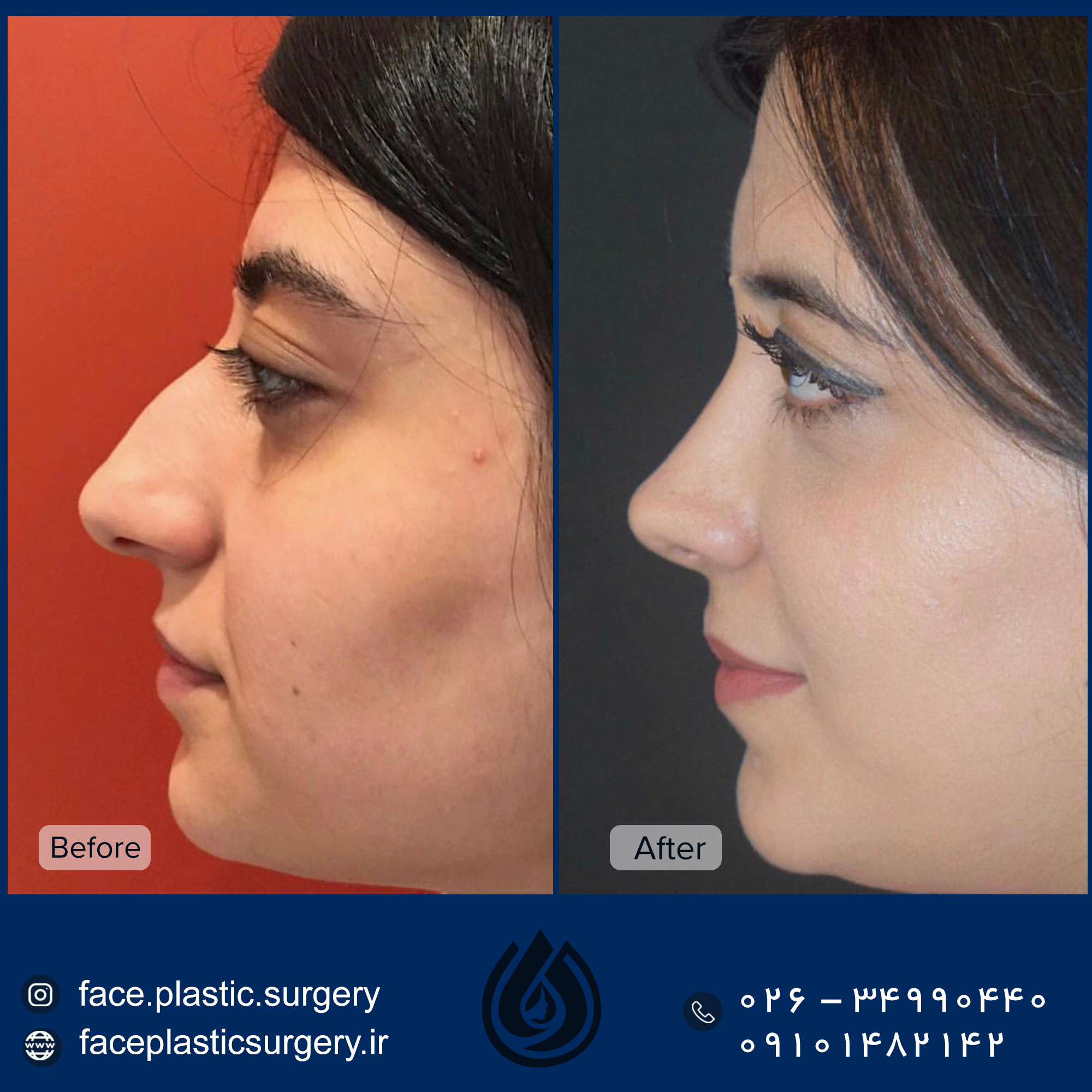 dr-norozi-before-after.jpg5