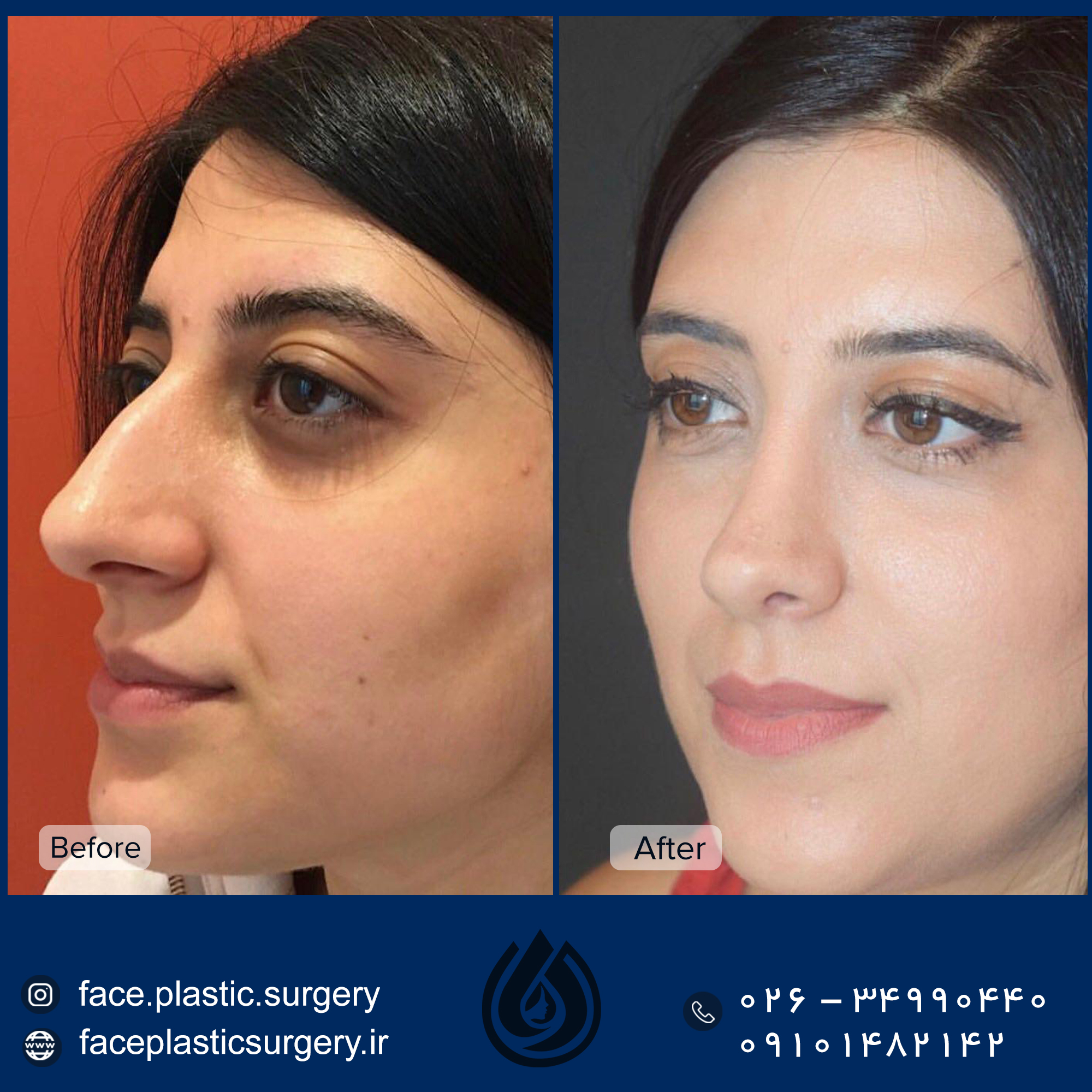 dr-norozi-before-after.jpg6