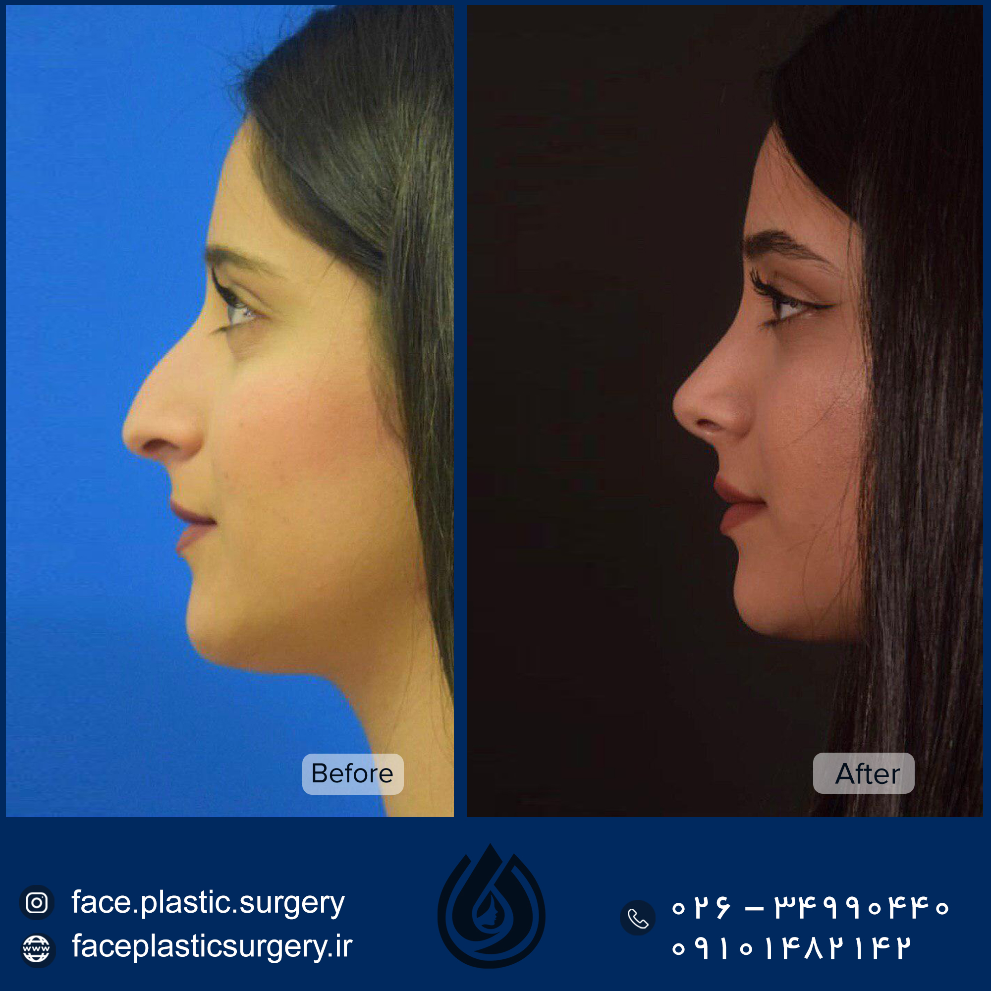 dr-norozi-before-after.jpg99