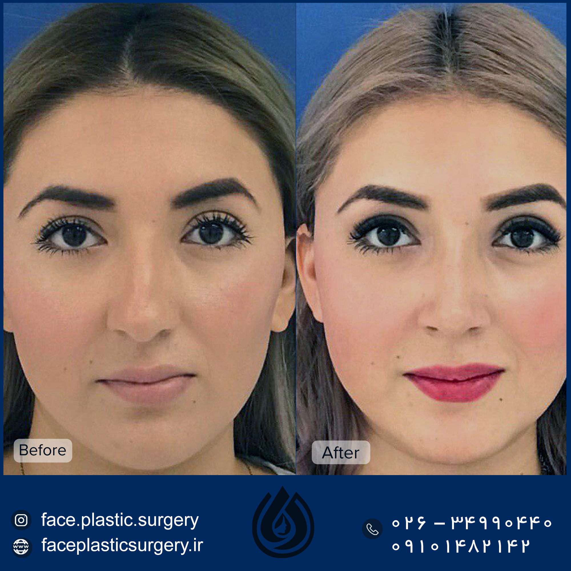 dr-norozi-before-after3