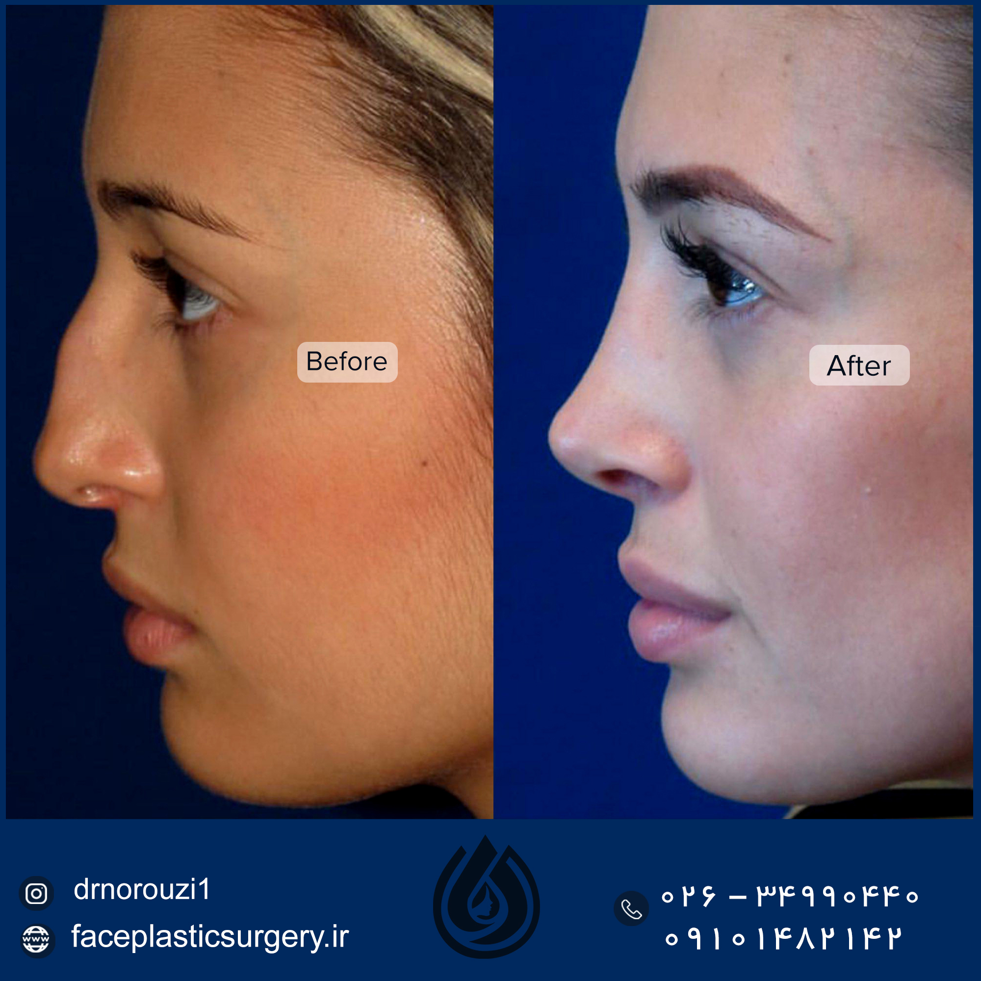 dr-norozi-before-after-5-14-1.jpgجدید (2)
